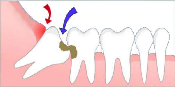 wisdom tooth in wrong angle