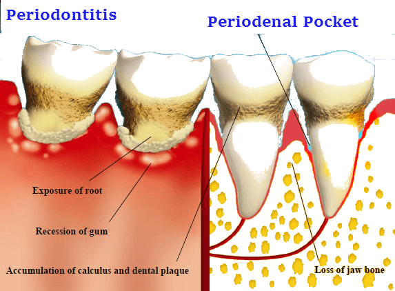 Periodenal pocket
