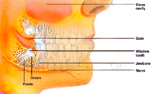 Symptoms of wisdom teeth