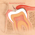 Wisdom Tooth Infection