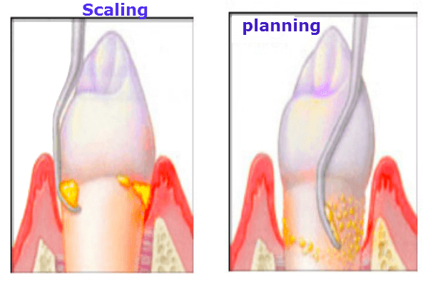 scaling and planing