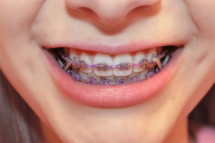 braces rubber bands