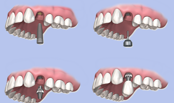Tips to Find the Cheap Dental Implants - Dentgap