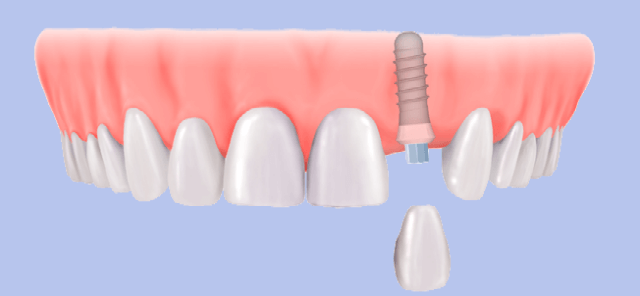 dental implants at least price