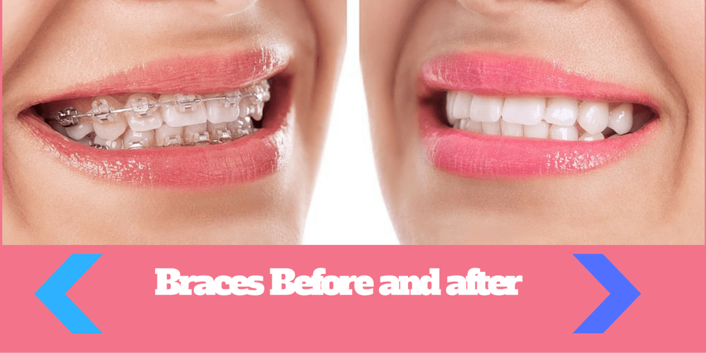 Smiles by Dr W and Dr R  Orthodontics in Boca Raton FL