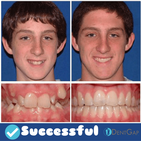 [Image: braces-before-and-after-images-2.png]