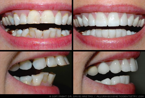 what changes veneers can bring