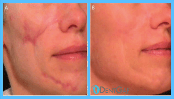 laser scar removal