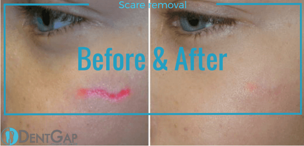 laser scar removal before and after