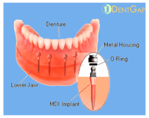mini dental implants reviews