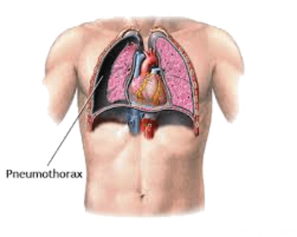 pneumothorax ex vacuo