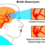 symptoms of brain aneurysm