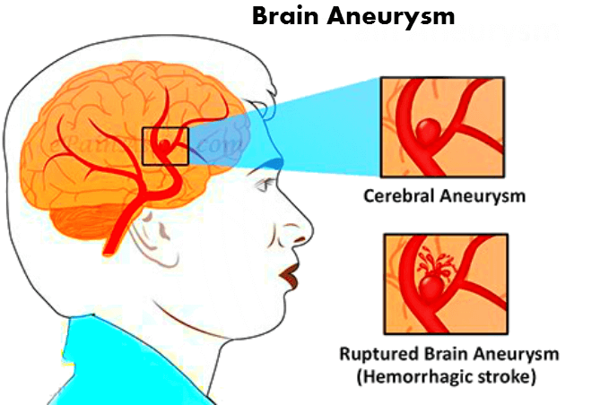 symptoms of brain aneurysm: how to find aneurysm in early days, Human body
