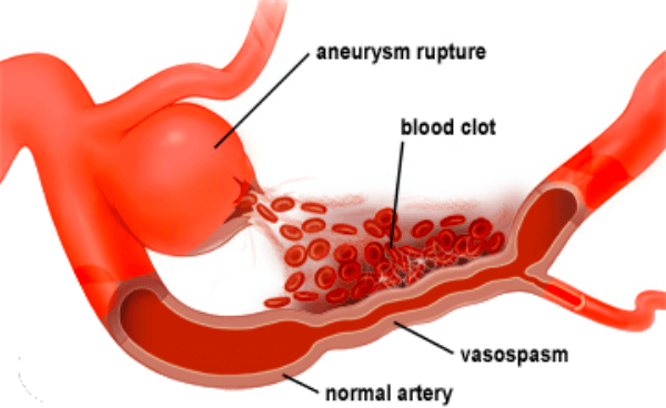 what causes a brain aneurysm
