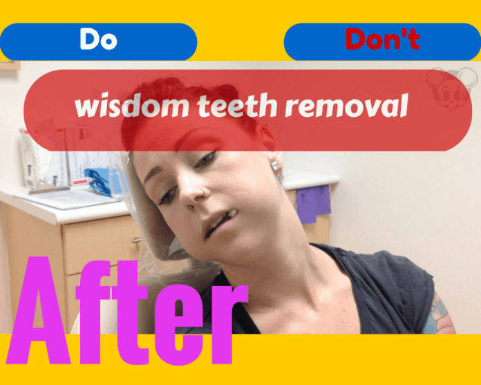 what to do after wisdom teeth removal