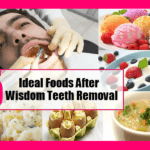 Best Foods to Eat After Tooth Extraction & Wisdom Tooth Removal