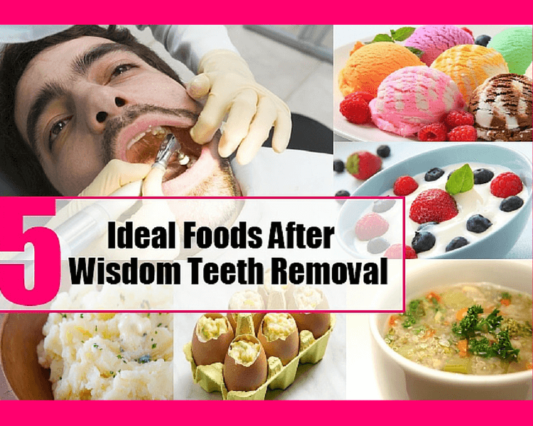 Tooth Extraction Foods To Eat After