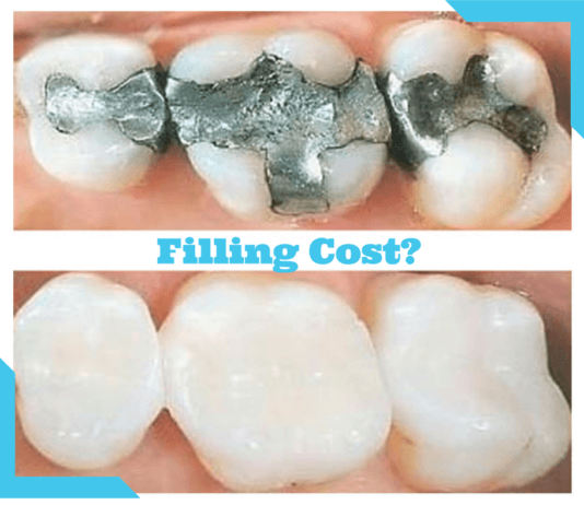 How Much Does a Filling Cost