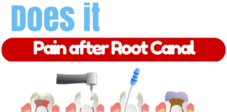 Tooth Pain after Root Canal treatment