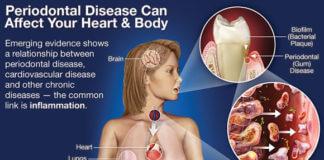dentist health body
