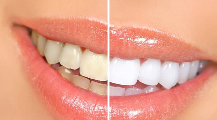 Choosing among Several Teeth Whitening Home Remedies