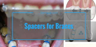 Spacers for Braces or expander for braces