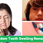 Wisdom Teeth Swelling