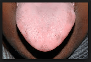 black-spots-under-tongue