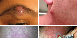 infected ingrown hair pictures and images