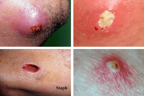 infected ingrown hair causes pictures cysts staph