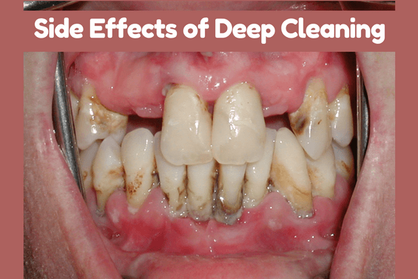 Deep Cleaning Of Teeth Side Effects How To Overcome It