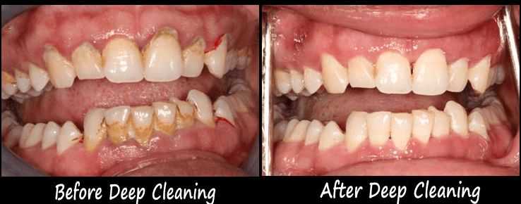 deep teeth cleaning before and after