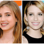 10 Celebrities with Veneers Before and After