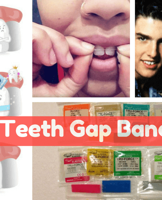 Teeth Gap Bands Do they Work Types & Side Effects of Bands
