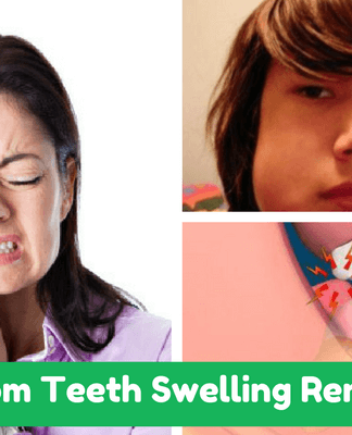 wisdom-teeth-swelling-remedies