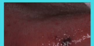 Black Spots on Tongue